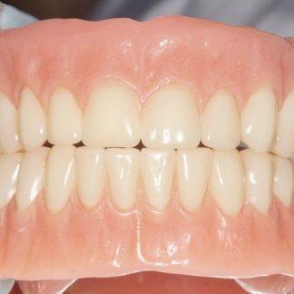 protesis-odontoexpertos